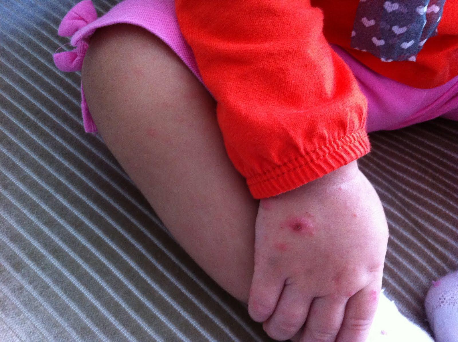 Bir çocuğun ayaklarında döküntü