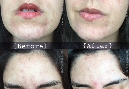 Paula's Choice Resist Toner Before & After :: The Acne Experiment