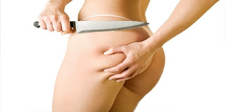 Natural Cures for Cellulite