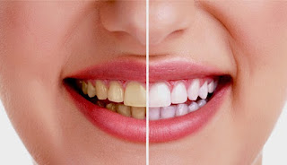 WooW!! Hanya Perlu 3 Menit Untuk Memutihkan Gigi