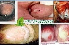 Obat Alami Untuk Penyakit Gonore