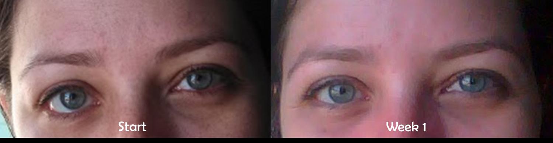 pommade contre l'acné maroc 88