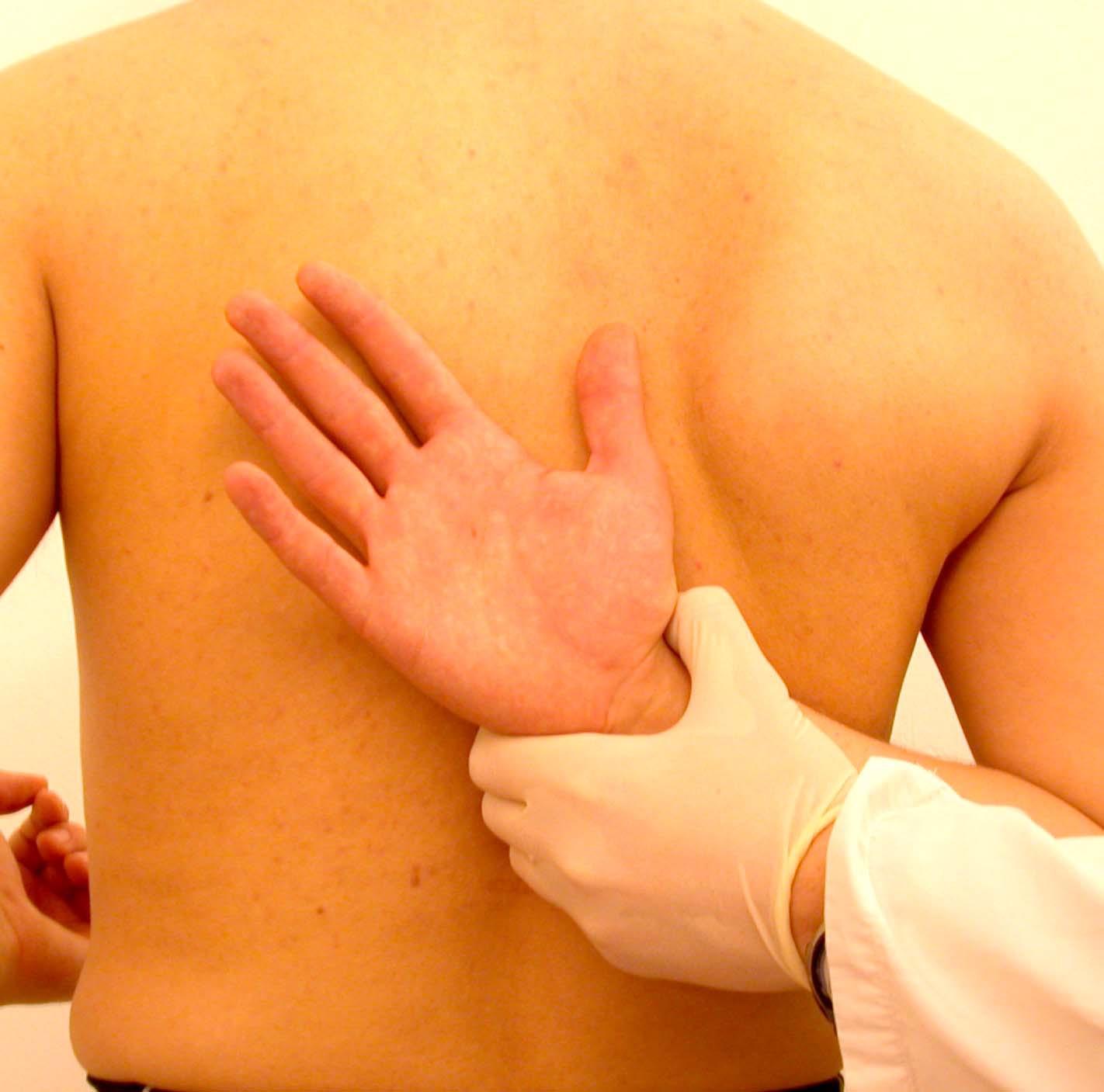 generalmente il sospetto di diagnostica differenziale deriva dal fatto che con nel dolore riferito si ha un assenza della limitazione funzionale
