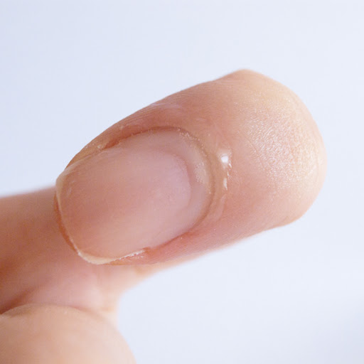 cuticle removal