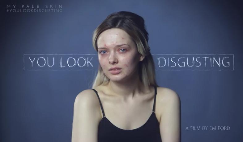 Wyglądasz obrzydliwie | Em Ford kontra internauci