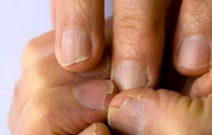 remedios caseros uñas quebradizas