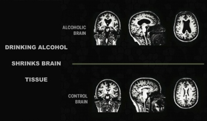 Alcohol Causes The Brain To Shrink