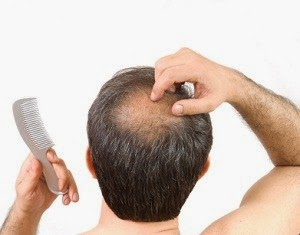 Perte de cheveux chez l 39 homme m dical sant for Perte de cheveux homme