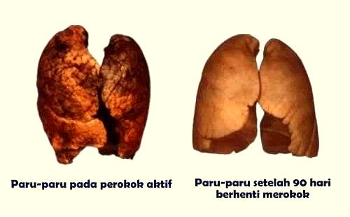 Paru-paru pada perokok