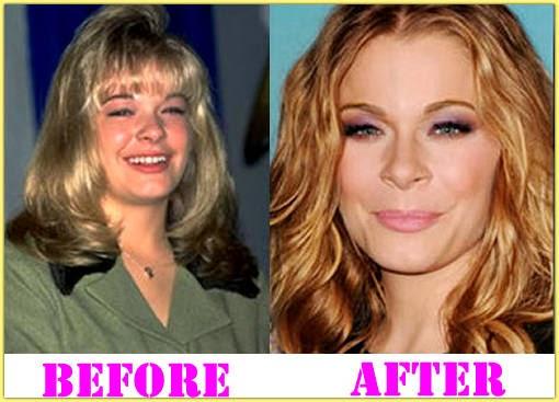 Leann Rimes Surgery
