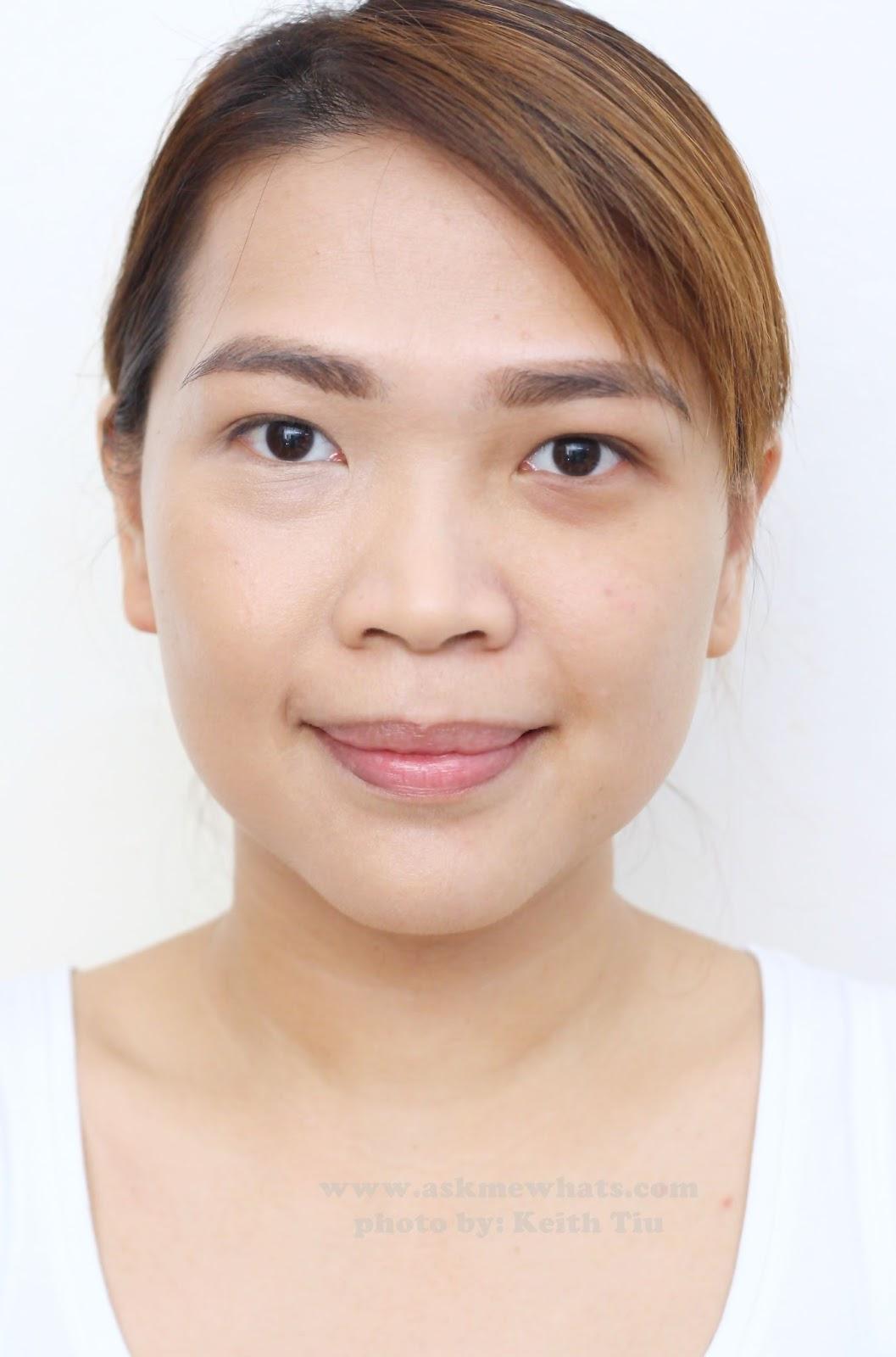 Bikini hair laser photo removal