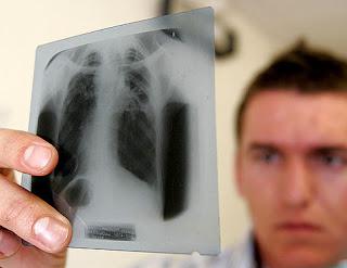 prueba tuberculosis