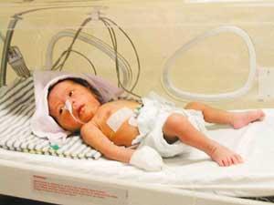 Refleks pada bayi adalah