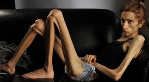 penyakit berbahaya dan mematikan anoreksia akibat diet ketat