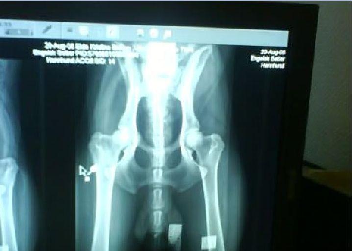 røntgen på engelsk