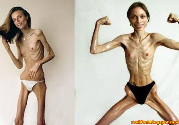 foto perempuan telanjang yang menghilangkan nafsu