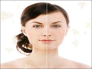 http://arganoilhome.com/wp-content/uploads/2015/08/argan-oil-for-acne.jpg