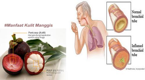 Cara mengolah kulit manggis untuk bronkitis