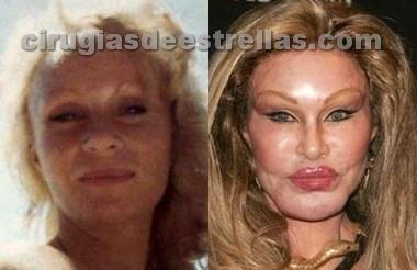 Jocelyn Wildenstein antes y después