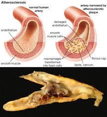 Pengobatan Untuk Sembuhkan Aterosklerosis