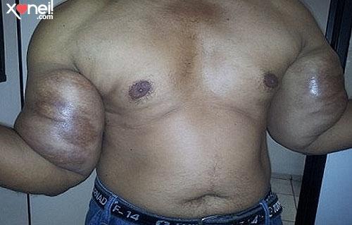 Tirinha Gordo Fresco: Perigo! Jovem injeta óleo mineral nos músculos e fica deformado!