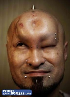 Masuk Silikon Di Dahi Untuk Kelihatan Macho ! | Silicon on the head