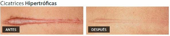 crema para cicatrices hipertróficas