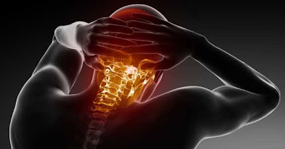 Upper cervical care neck pain and cervical spine disease