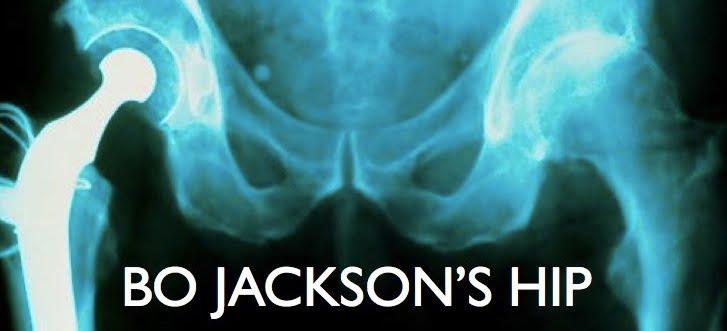 BO JACKSON'S HIP