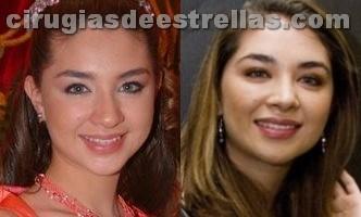Daniela Luján antes y después de la cirugia plástica