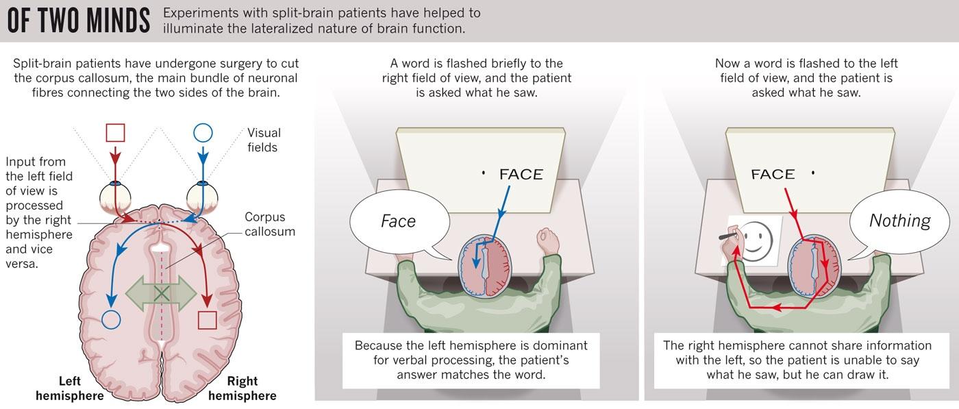 My Psychology Blog Sperry And Gazzaniga The Split Brain Study