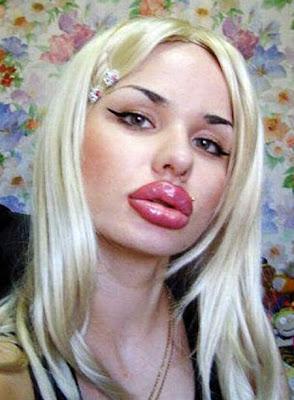 第一豐唇 19萬 超級厚唇女