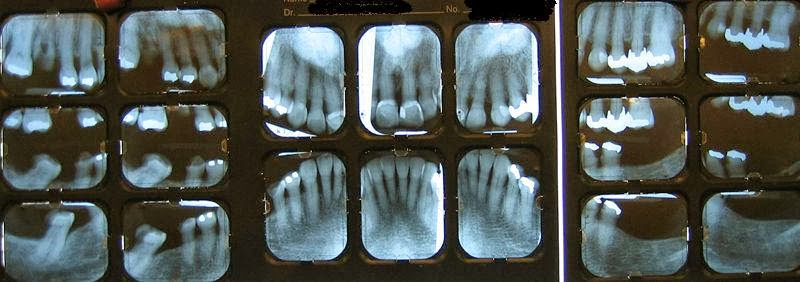 Digital radiography: A change for the better - DentistryIQ