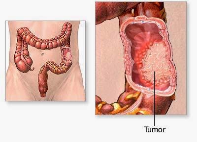 Obat ampuh tumor usus