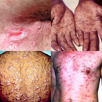 Gejala Penyakit Sipilis