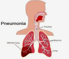pneumonia pada myasthenia gravis