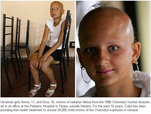 Pictures Of Deformed People Chernobyl Kidskunstinfo