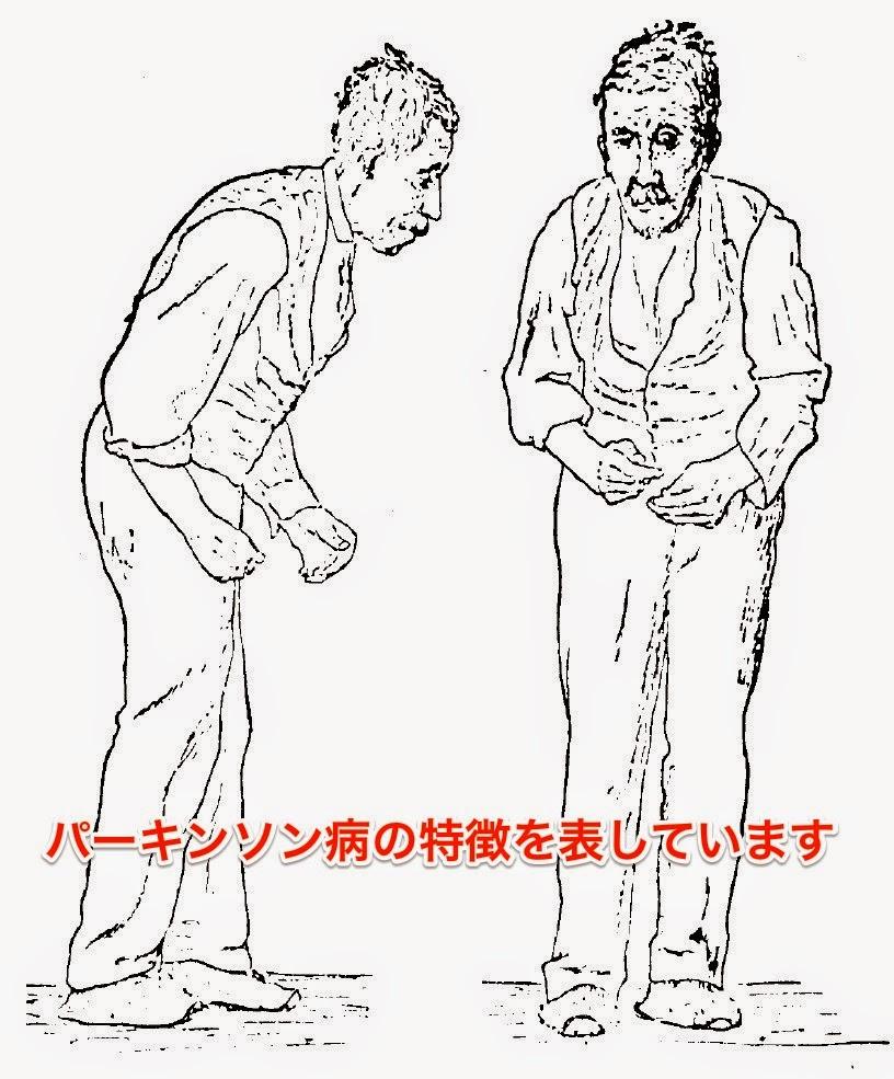 パーキンソン病の特徴的な姿勢