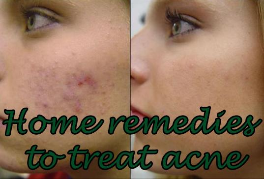 How to get rid of acne scars at home yahoo answers