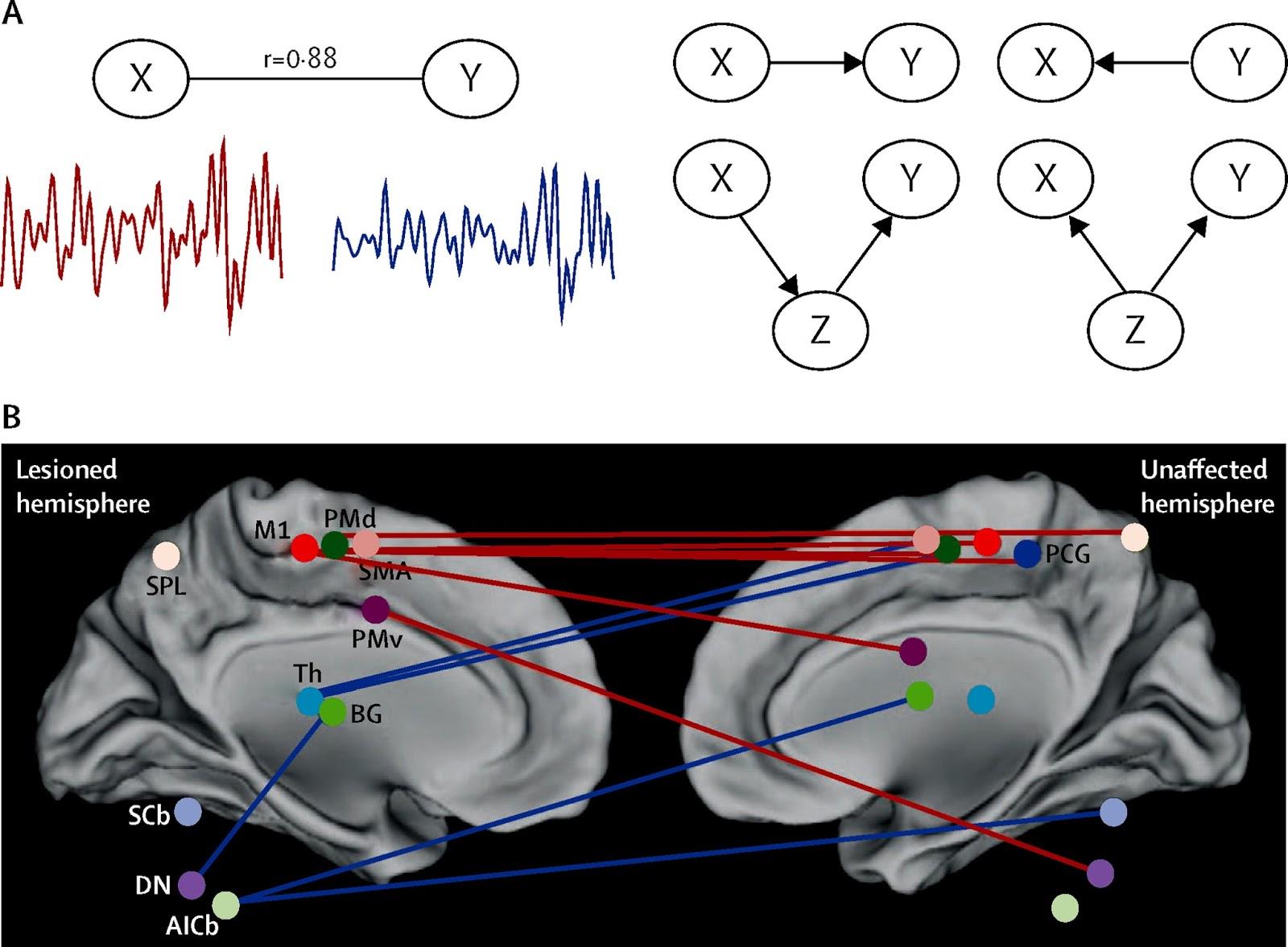 図:脳機能MRI