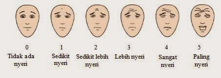 face pain scale