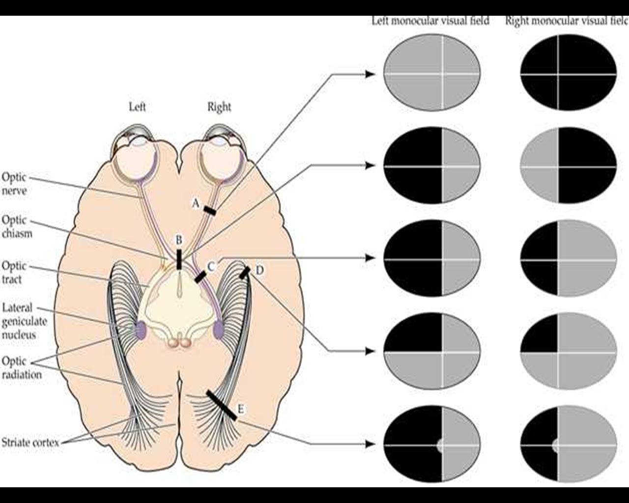 zonaprofesional: Cómo interpretar correctamente una campimetría