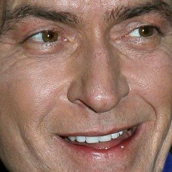 Charlie Sheen teeth