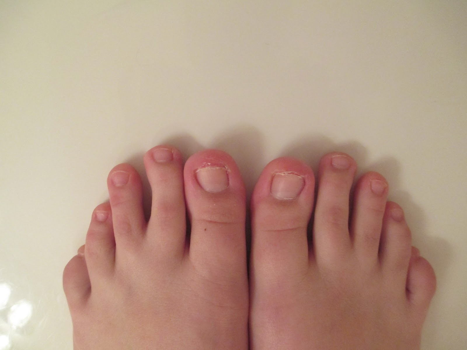 Pinterest: Trials & Triumphs: White Toes? Without Nail Polish?