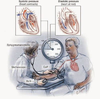 List of Nursing Diagnosis for Hypertension