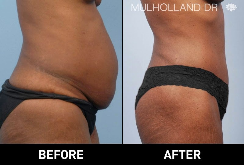 Before and after photos of a liposuction patient