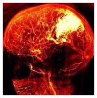 ictus danni cerebrali