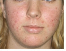 5 Nursing Diagnosis for Acne Vulgaris