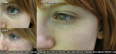 Crema di bioderma da posti di pigmentary