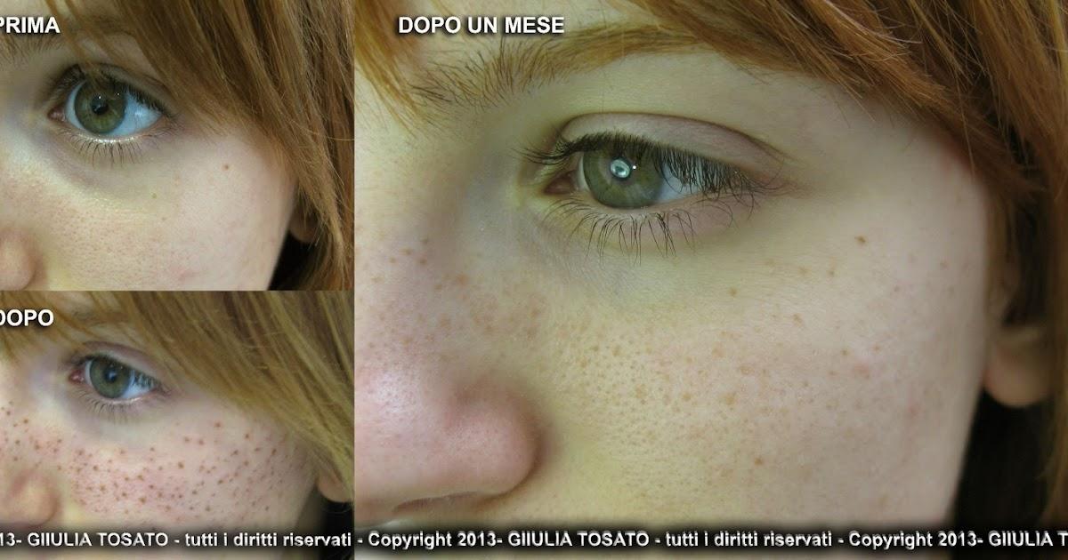 Il pigmentary lo nota su una faccia